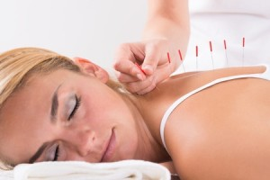 Acupuncture Treatment - 1
